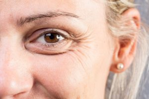 crows feet anti-wrinkle