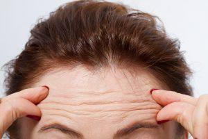 forehead wrinkles anti-wrinkle
