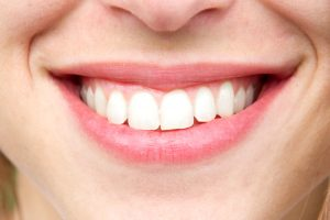 gummy smile anti-wrinkle