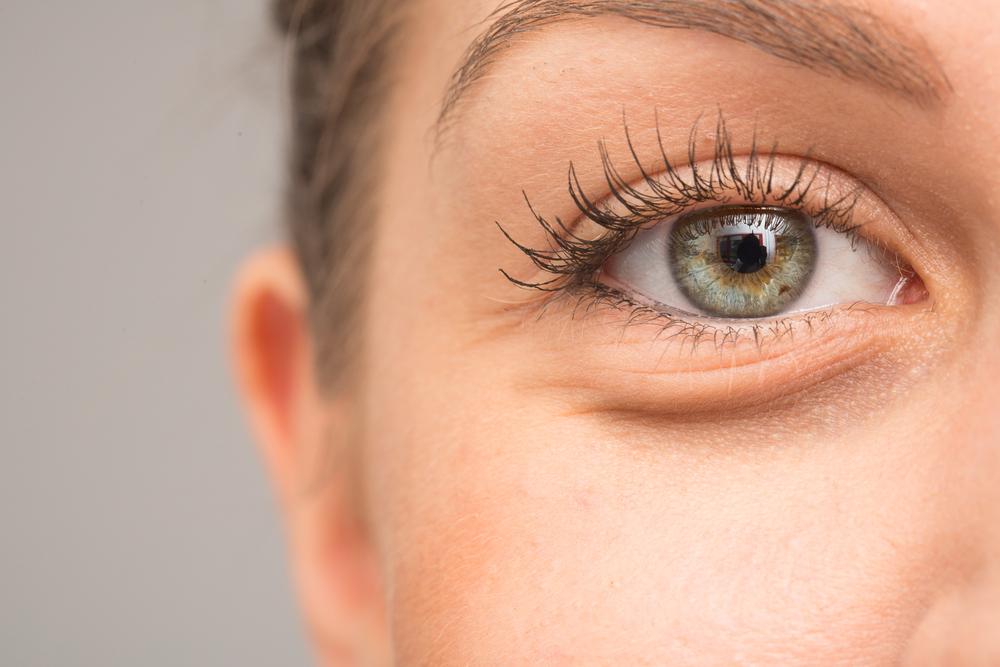 under eye dermal filler
