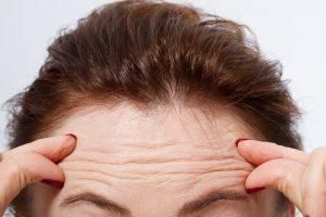 forehead wrinkles anti-wrinkle